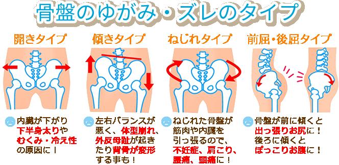 骨盤のゆがみ種類